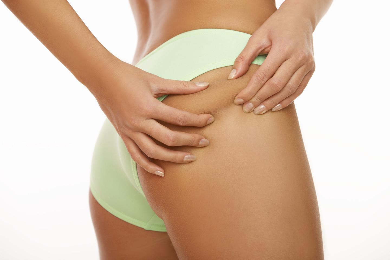 Cellulite – Behandlung