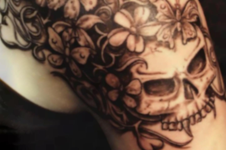 Entfernung von Tattoos